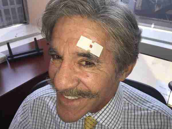 Geraldo, fresh off of his injury from the bayonet team at Fox And Friends...sometimes a little close for comfort